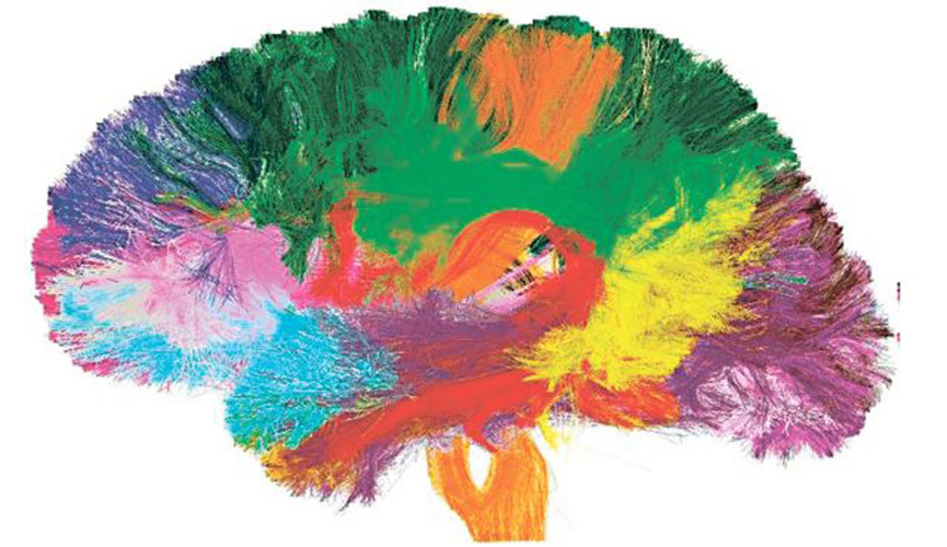 Large Brain Picture 2